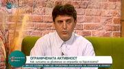 30% от българите страдат от разширени вени в някаква степен