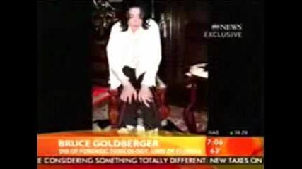 Шокиращи кадри с белезите на Майкъл Джексън
