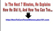 Home Remedies For Tonsil Stones