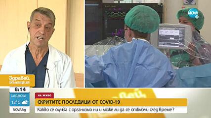 Проф. Костов: Излекуван може да има симптоми на COVID-19 до 6 месеца