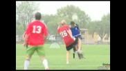 Лош удар в лицето повреме на футболен мач !