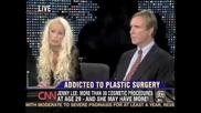 злоупотреба с пластични операции