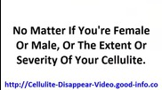 What To Do About Cellulite, How Do I Get Rid Of Cellulite, How To Combat Cellulite On Legs
