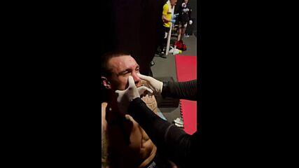 Козметични процедури след битката на Дани Илиев в EFM Show