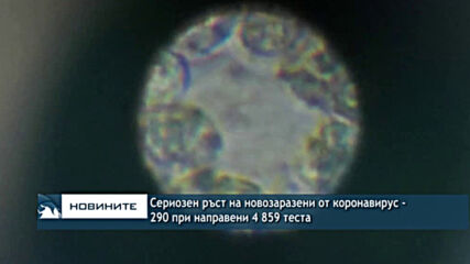290 новозаразени от коронавирус при 4 859 PCR теста
