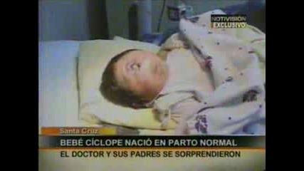 Ужасно - в Боливия се роди бебе циклоп :(
