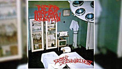 Dead Infection - Surgical Disembowelment 1993 - Full Album