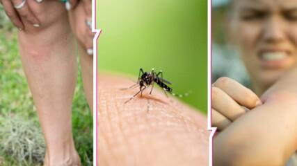Какво точно се случва с тялото ни, когато ни ухапе комар?