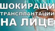 Най-шокиращите трансплантации на лице