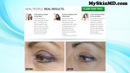 Nuvalift Review - Want To Erase Wrinkles Totally? Try Nuvalift Anti Aging Complex