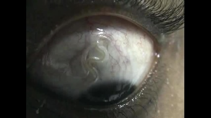 Ocular Loiasis - Филариоза (+18)