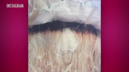 Lady Gaga Burns her Scalp Dying Her Hair Platinum Blond