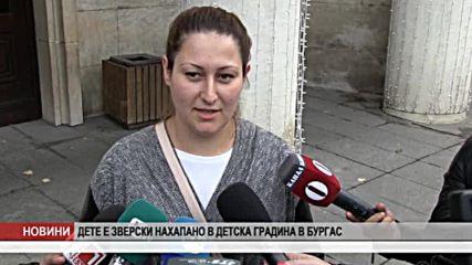Дете е зверски нахапано в детска градина в Бургас