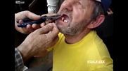 Вадене на зъби по балкански