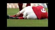 Eduardo Da Silva Dudu - broken his leg
