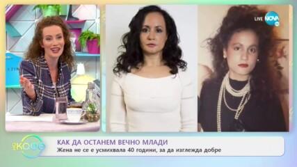 Жена не се е усмихвала 40 години, за да изглежда добре - На кафе (24.02.2021)