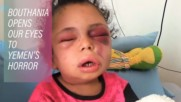 Orphaned at 5: A victim of Yemen's conflict