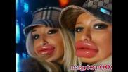 Момичетата c най - големите устни в света