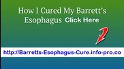 Barrett's Esophagus Icd 9, Barrett's Esophagus Foods To Avoid, Barrett's Esophagus Cough