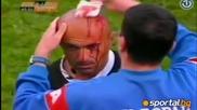 Разкървавиха главата на съдия в Босна и Херцеговина