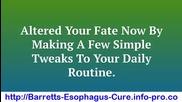 Barretts Esophagus, Barrett's Esophagus Hiatal Hernia, Barrett's Esophagus Epithelium