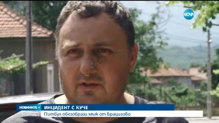Побеснял питбул отхапа лицето на мъж в Брацигово