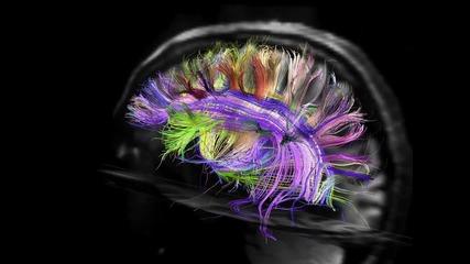 Карта на невронните вериги в мозъка получена чрез магнитно-резонансна томография -
