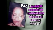 Leaked Rihanna Photo - Bruised & Battered After Alleged Chris Brown Attack
