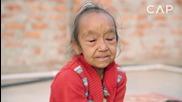 Историята, която разплака милиони по цял свят: Нелечима болест превръща децата в старци