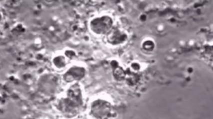 Опасната L-форма на бактериите и връзката ù с ваксината БЦЖ