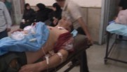Syria: 3 killed, 28 injured by opposition shelling in Aleppo *GRAPHIC*
