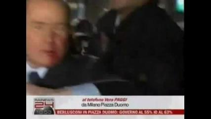 Разбиха лицето на Силвио Берлускони