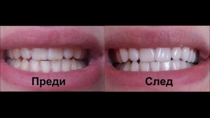 Избелване на зъби вкъщи!