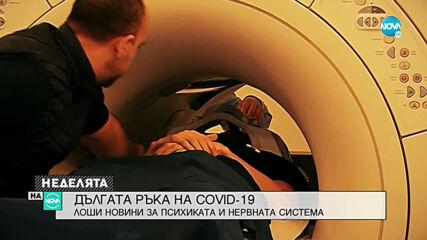 Как COVID-19 засяга нервната ни система?