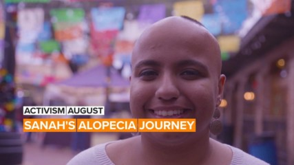 Activism August: Sanah's alopecia journey took her from shame to spirit