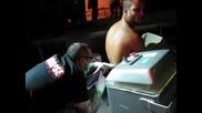 заличаване на татуировка