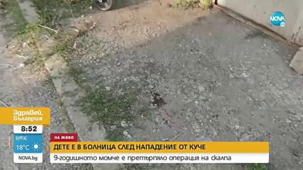9-годишно дете е с 48 шева на главата след нападение от куче