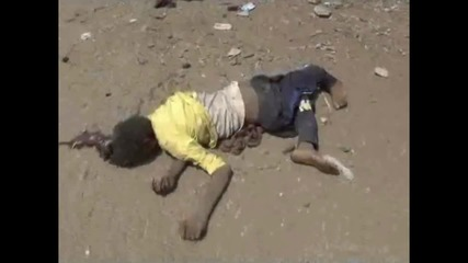 Yemen: At least 41 civilians killed in Saudi-led airstrikes *EXTREMELY GRAPHIC*