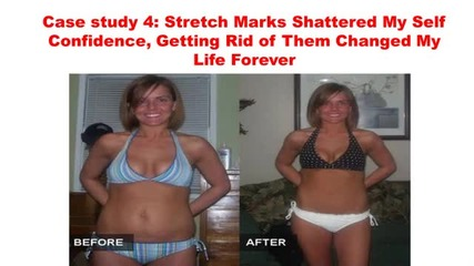 Home Remedies For Stretch Marks On Stomach