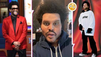 The Weeknd шокира със снимка на лицето си. Сложил ли си е наистина ботокс или е нещо друго?