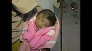 Бебето родено с две лица, четири очи, два носа, две усти