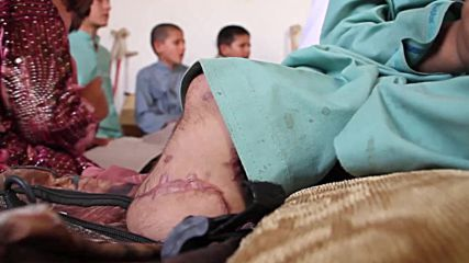 Afghanistan: Six siblings and cousin maimed by explosion learn to walk again