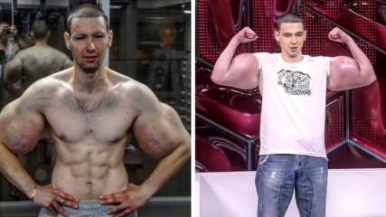 Тежки дни за вазелиновия Попай: Отрязаха му мускулите в болезнена операция