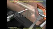 Наместване на счупена бедрена кост 3D