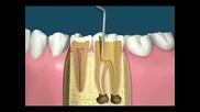 Правене На Зъби