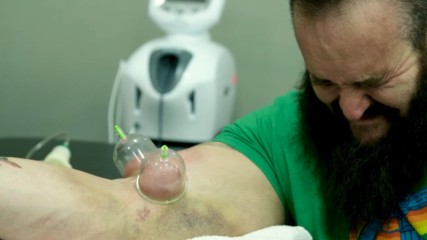 Braun Strowman's elbow surgery and harrowing rehab: Remaking The Monster - Episode 1