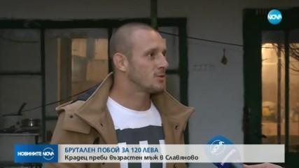 БРУТАЛЕН ПОБОЙ ЗА 120 ЛЕВА: Крадец преби възрастен мъж в Славяново (ВИДЕО)