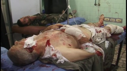Syria: Shelling victims treated at hospital in govt-held area of Aleppo *GRAPHIC*