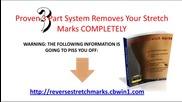 Stretch Marks Comprehensive Information