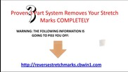 Reverse Stretch Marks - How to remove stretch marks completely